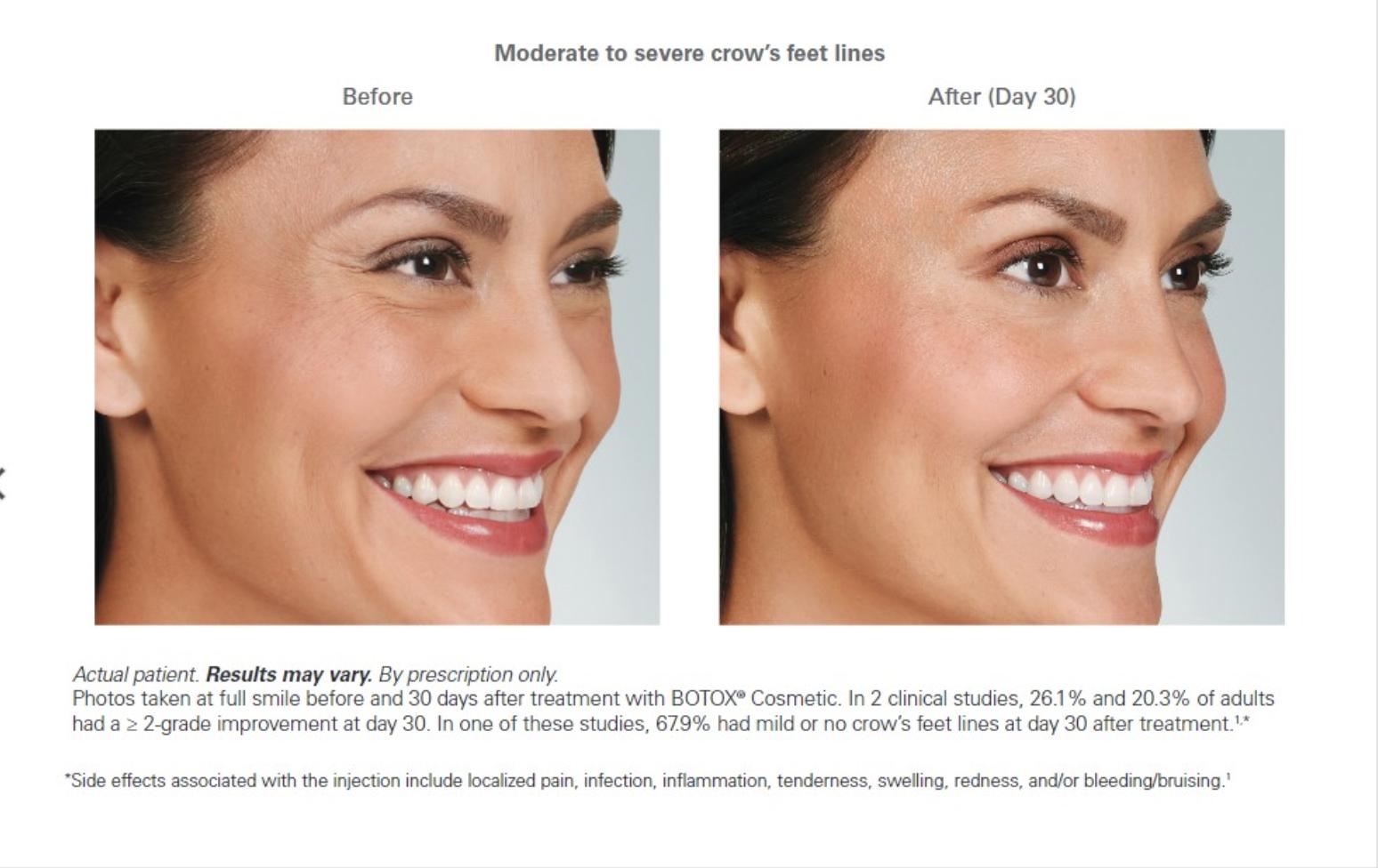 Botox progression of woman